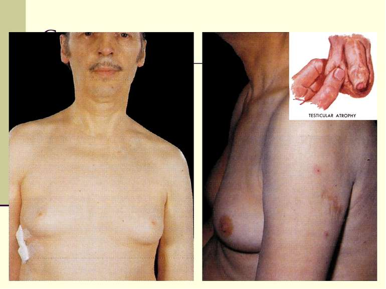Gynecomasty