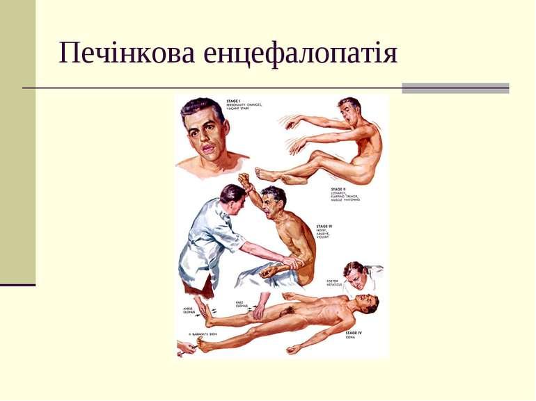 Печінкова енцефалопатія