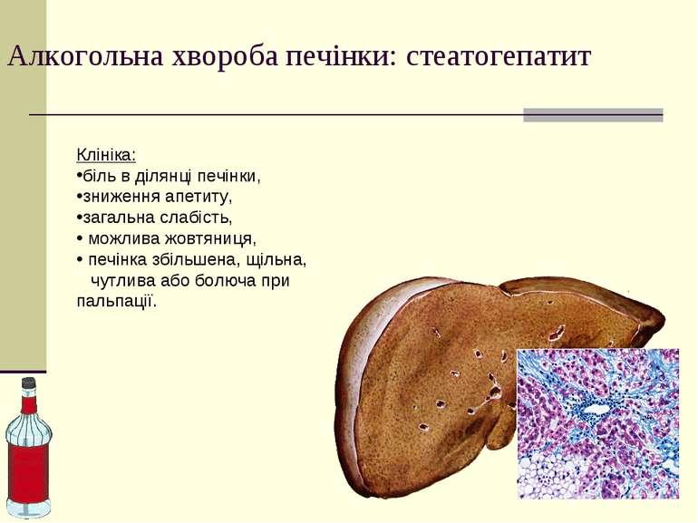Алкогольна хвороба печінки: стеатогепатит Клініка: біль в ділянці печінки, зн...
