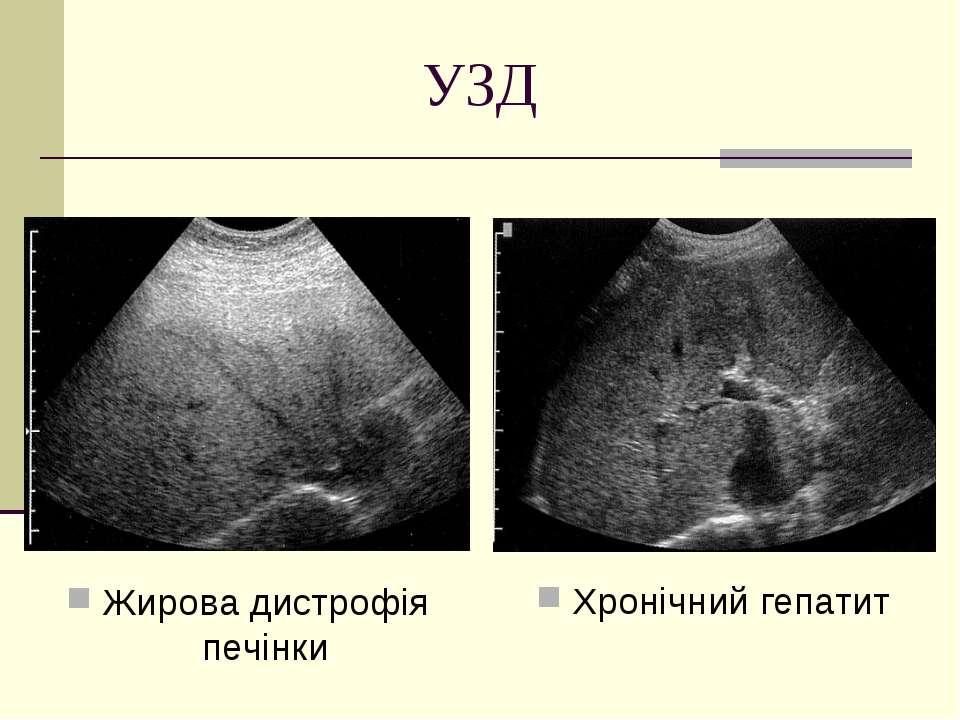 УЗД Жирова дистрофія печінки Хронічний гепатит