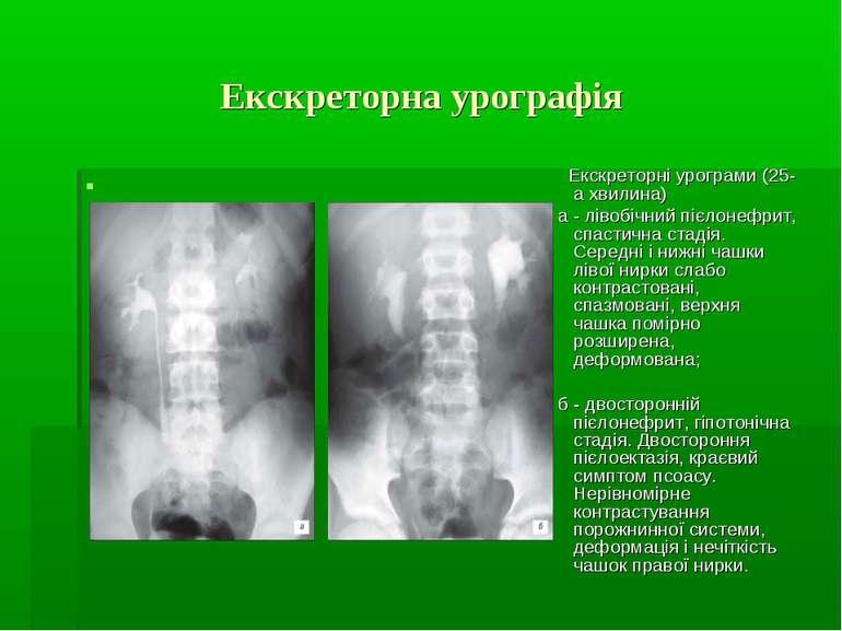 Екскреторна урографія Екскреторні урограми (25-а хвилина) а - лівобічний пієл...