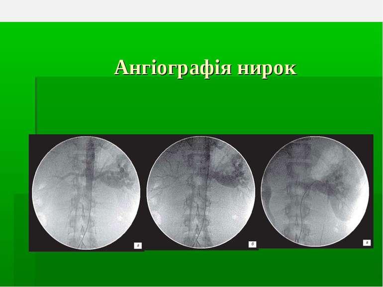 Ангіографія нирок