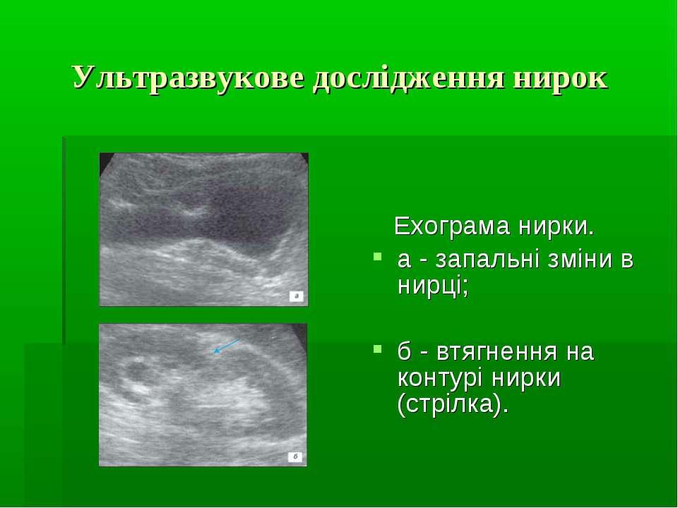 Ультразвукове дослідження нирок Ехограма нирки. а - запальні зміни в нирці; б...