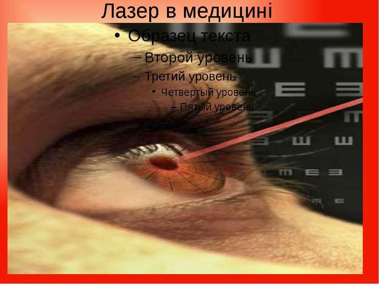 Лазер в медицині