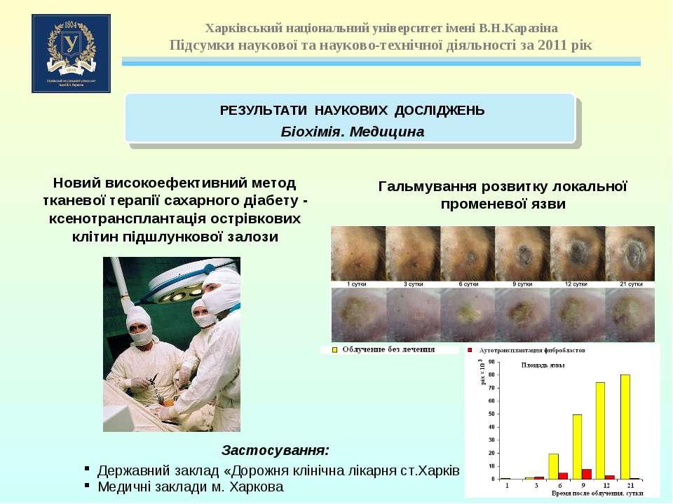 Новий високоефективний метод тканевої терапії сахарного діабету - ксенотрансп...
