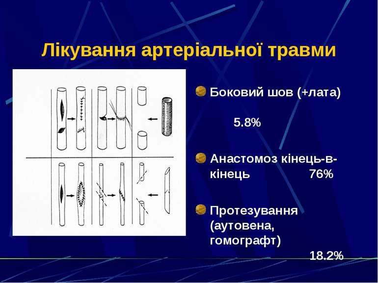 Лікування артеріальної травми Боковий шов (+лата) 5.8% Анастомоз кінець-в-кін...