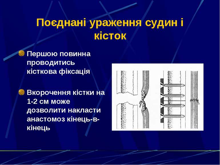 Поєднані ураження судин і кісток Першою повинна проводитись кісткова фіксація...