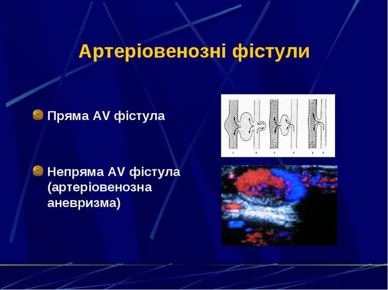 Артеріовенозні фістули Пряма AV фістула Непряма AV фістула (артеріовенозна ан...