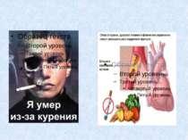 Никотинова залежність Викликає: Дратівливість Депресію Головний біль Безсоння