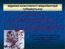 відмінні властивості мікробактерії туберкульозу стійкість до дії кислот та сп...