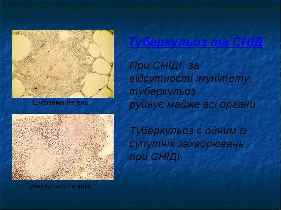 Туберкульоз та СНІД При СНІДІ, за відсутності імунітету, туберкульоз руйнує м...
