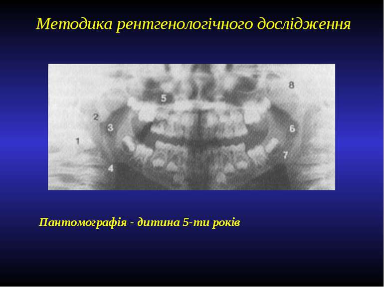 Методика рентгенологічного дослідження Пантомографія - дитина 5-ти років