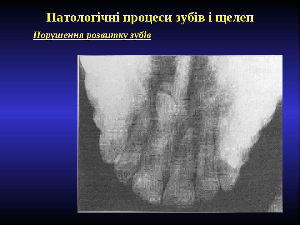 Патологічні процеси зубів і щелеп Порушення розвитку зубів