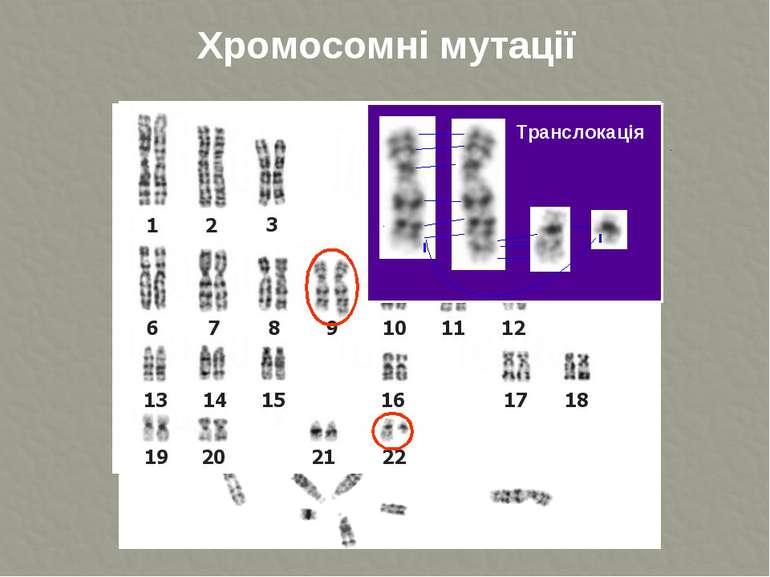 Хромосомні мутації Транслокація ТДМУ