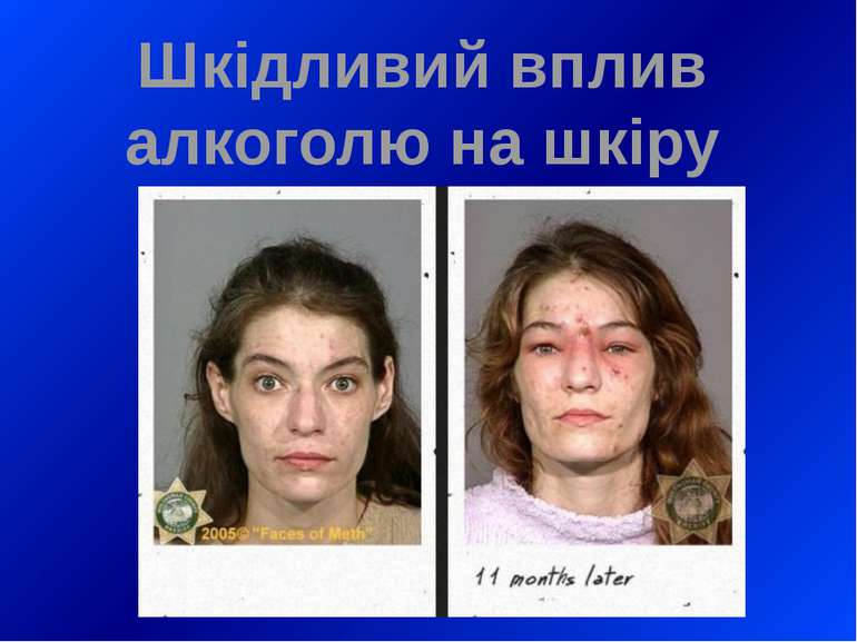Шкідливий вплив алкоголю на шкіру
