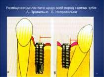 * Розміщення імплантатів щодо осей поряд стоячих зубів: А. Правильно Б. Непра...