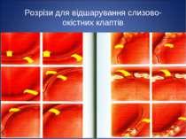 * Розрізи для відшарування слизово-окістних клаптів