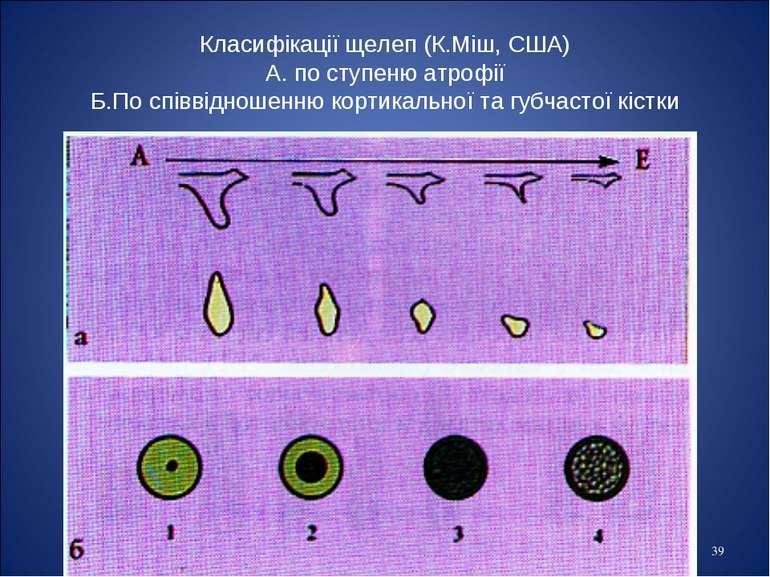 * Класифікації щелеп (К.Міш, США) А. по ступеню атрофії Б.По співвідношенню к...