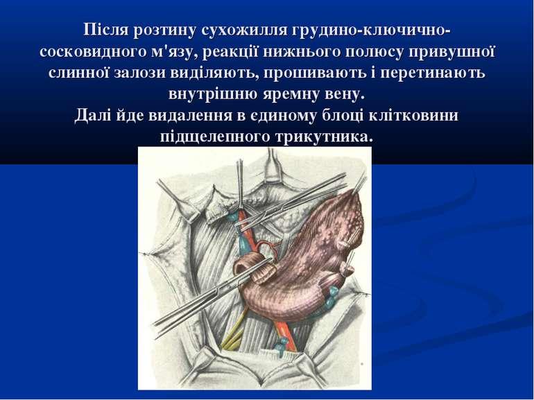 Після розтину сухожилля грудино-ключично-сосковидного м'язу, реакції нижнього...