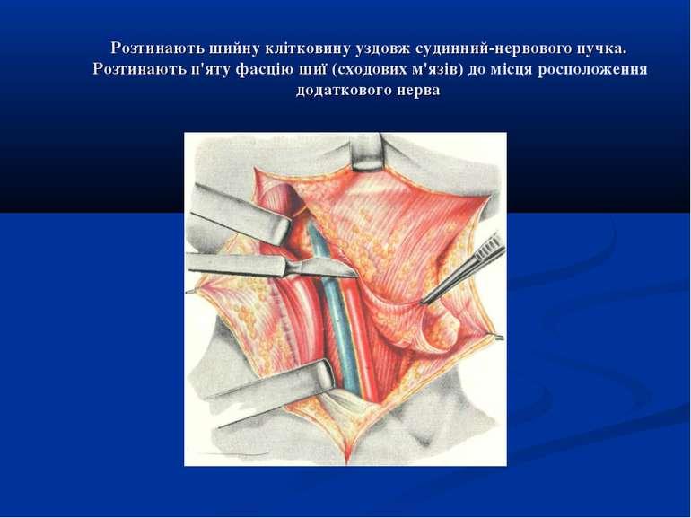 Розтинають шийну клітковину уздовж судинний-нервового пучка. Розтинають п'яту...