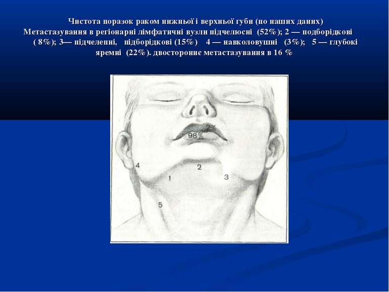Чистота поразок раком нижньої і верхньої губи (по наших даних) Метастазування...