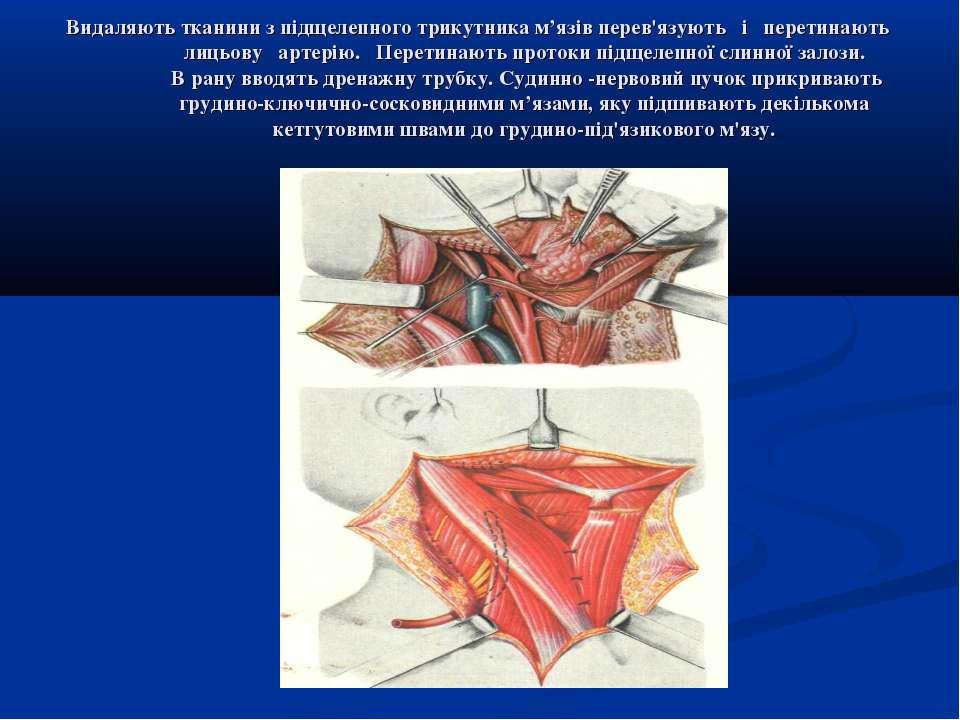 Видаляють тканини з підщелепного трикутника м'язів перев'язують і перетинають...