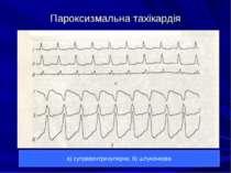 Пароксизмальна тахікардія а) суправентрикулярна; б) шлуночкова