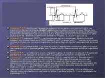 Інтервал P-Q(R) відображає тривалість атріовентрикулярного проведення тобто ч...