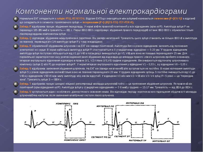 Компоненти нормальної електрокардіограми Нормальна ЕКГ складається з зубців: ...