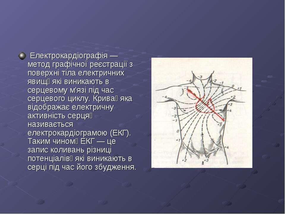 Електрокардіографія — метод графічної реєстрації з поверхні тіла електричних ...