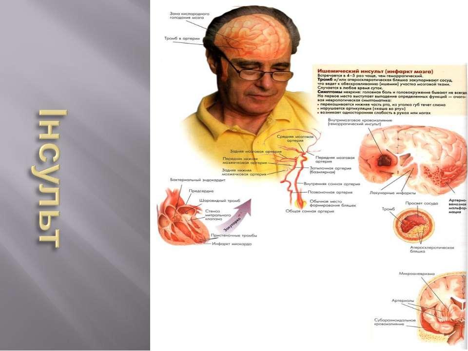 Фактори,що негативно впливають на серцево - судинну систему