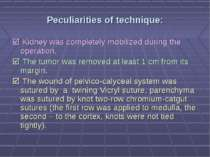 Peculiarities of technique: Kidney was completely mobilized during the operat...
