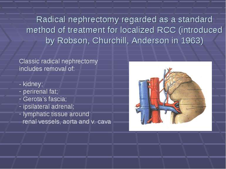 Radical nephrectomy regarded as a standard method of treatment for localized ...