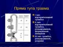 Пряма тупа травма І тип- відтермінований тромбоз ІІ тип- відтермінований тром...