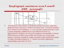 Конфігурація магнітного поля в методі ЯМР- томографії Вертикальні лінії умовн...