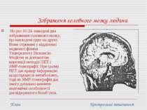 Зображеня головного мозку людини На рис.10.24. наведені два зображення головн...