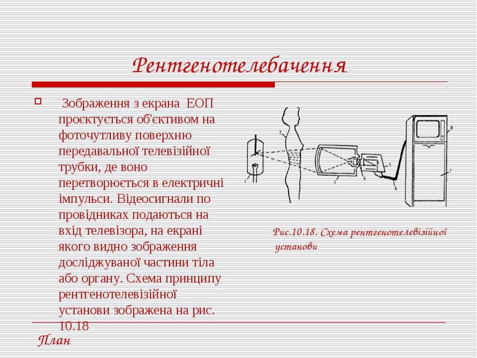 Рентгенотелебачення Зображення з екрана ЕОП проєктується об'єктивом на фоточу...