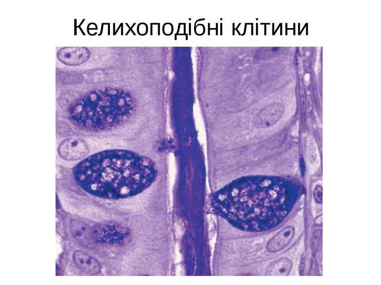 Келихоподібні клітини