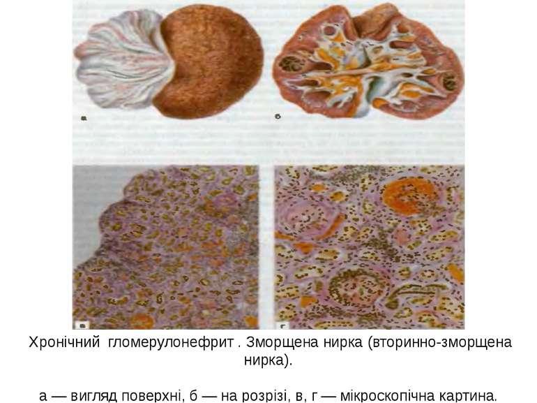 Хронічний гломерулонефрит . Зморщена нирка (вторинно-зморщена нирка). а — виг...
