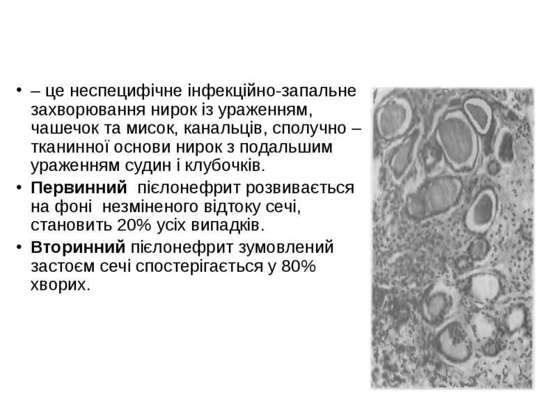 Пієлонефрит – це неспецифічне інфекційно-запальне захворювання нирок із ураже...