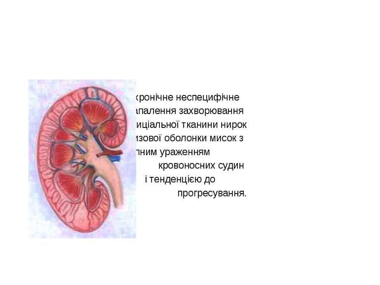 Хронічний пієлонефрит – це хронічне неспецифічне запалення захворювання інтер...