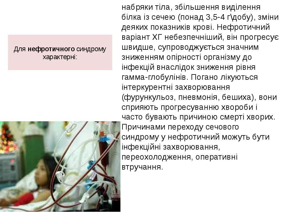 Для нефротичного синдрому характерні: набряки тіла, збільшення виділення білк...