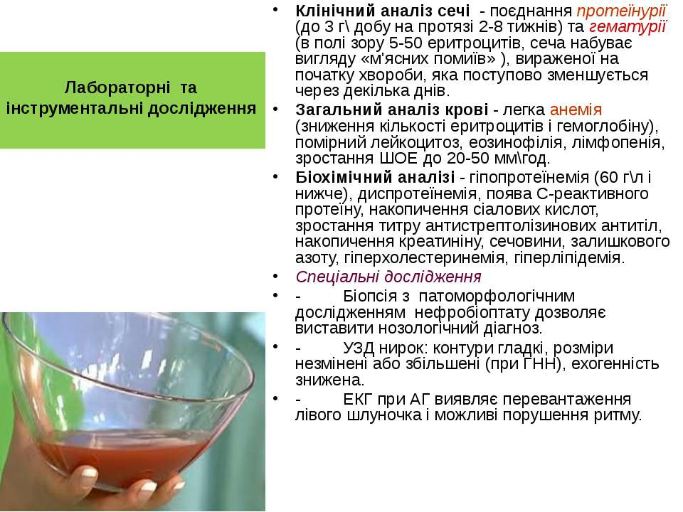 Лабораторні та інструментальні дослідження Клінічний аналіз сечі - поєднання ...