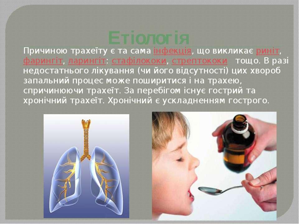 Етіологія Причиною трахеїту є та самаінфекція, що викликаєриніт,фарингіт,...