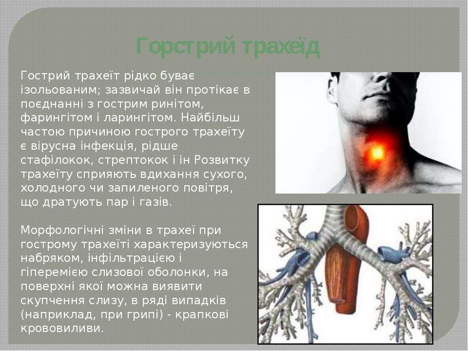 Гострий трахеїт рідко буває ізольованим; зазвичай він протікає в поєднанні з ...