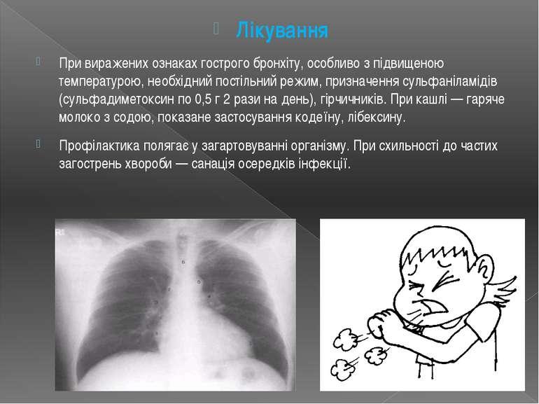 Лікування При виражених ознаках гострого бронхіту, особливо з підвищеною темп...