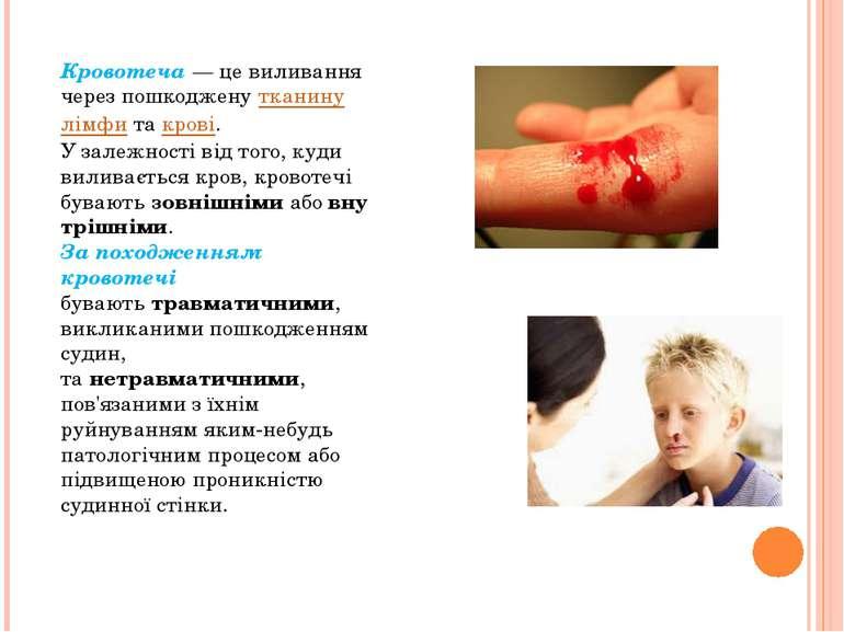 Кровотеча— це виливання через пошкодженутканинулімфитакрові. У залежност...