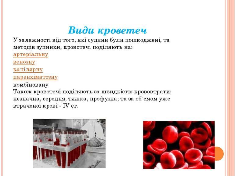 Види кроветеч У залежності від того, які судини були пошкоджені, та методів з...