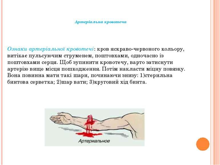 Артеріальна кровотеча Ознаки артеріальної кровотечі: кров яскраво-червоного к...