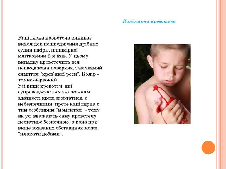 Капілярна кровотеча Капілярна кровотеча виникає внаслідок пошкодження дрібних...